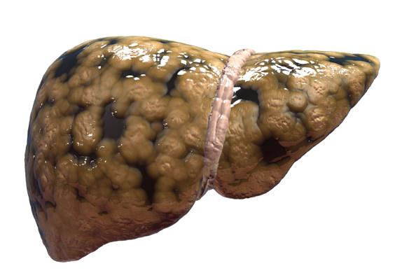 PQQ-non-alcoholic-fatty-liver
