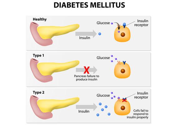 Diabetes mellitus adult 2 natural treatment