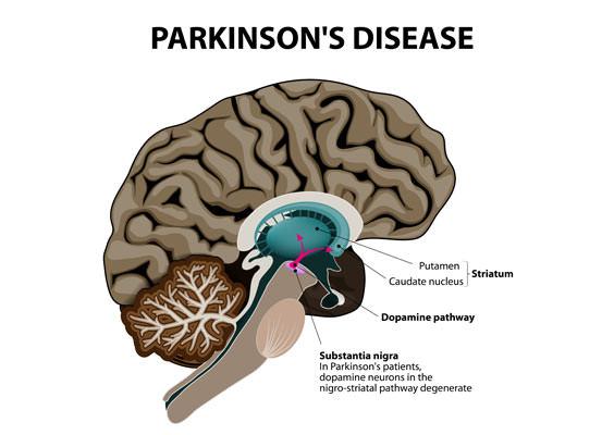 parkinsons-disease